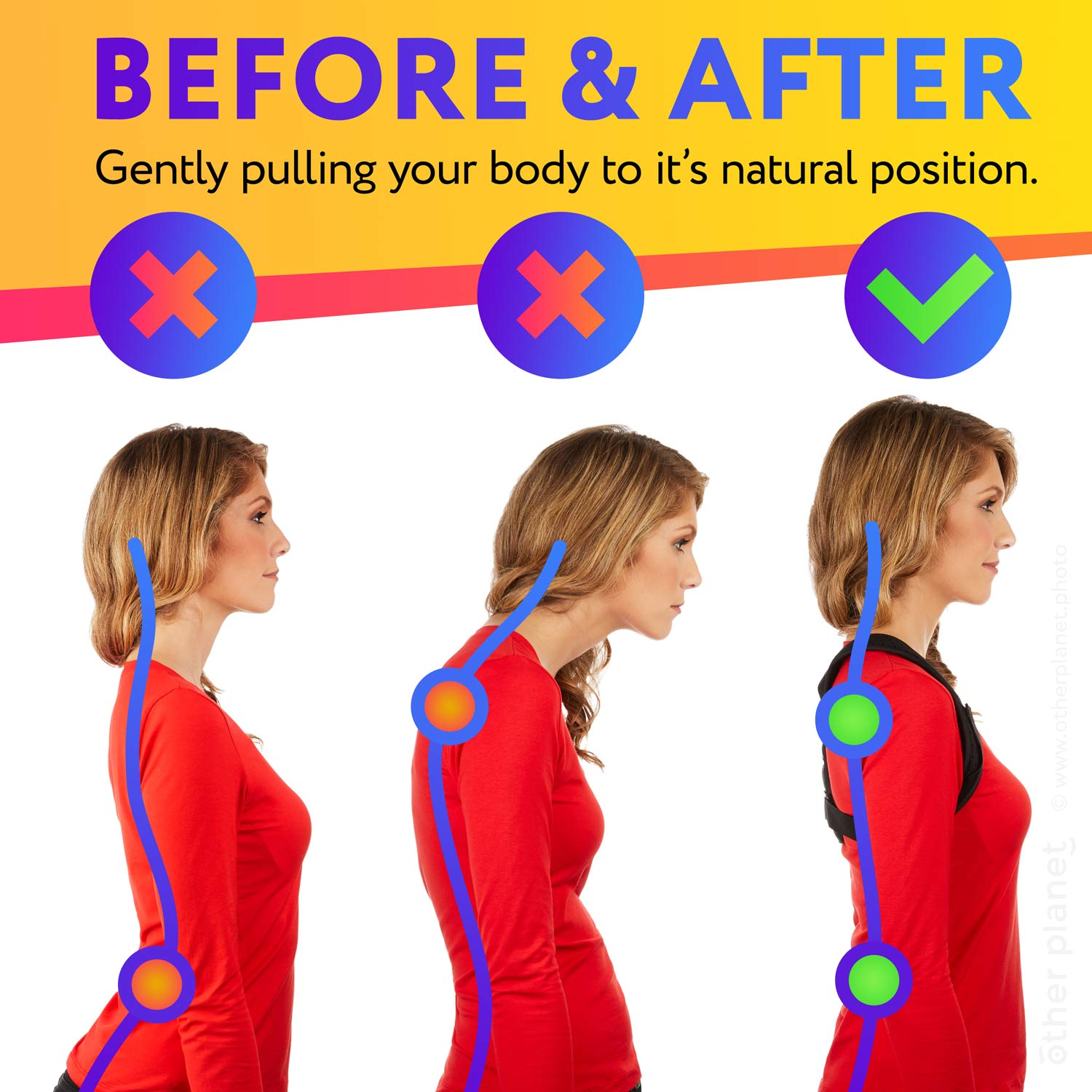 Before and after image for Posture Corrector